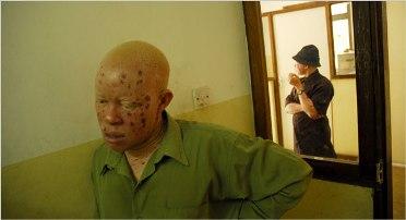 afrikar albinoa