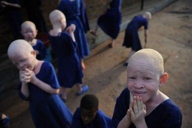 Afrikako albinoak
