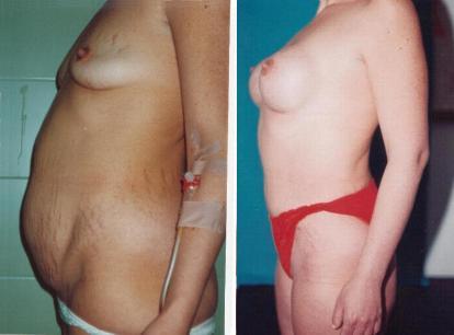 liposukzio, abdomiplastia eta bular handitzea